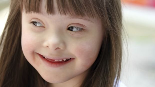 crianca-menina-sindrome-down-20121026-size-620
